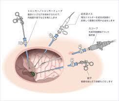胃がん内視鏡手術