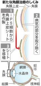 角膜細胞新たな移植法
