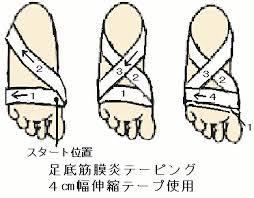 足底筋膜炎テープ1