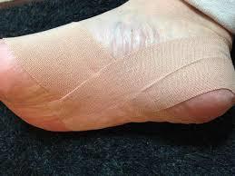 足底筋膜炎テープ2
